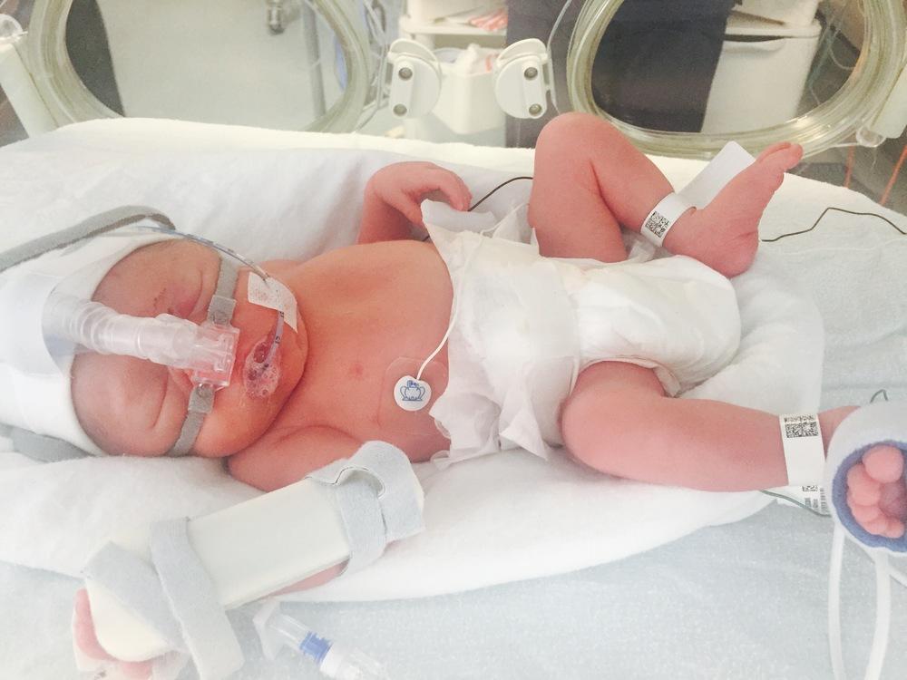 sophia lewis day 1 premature baby
