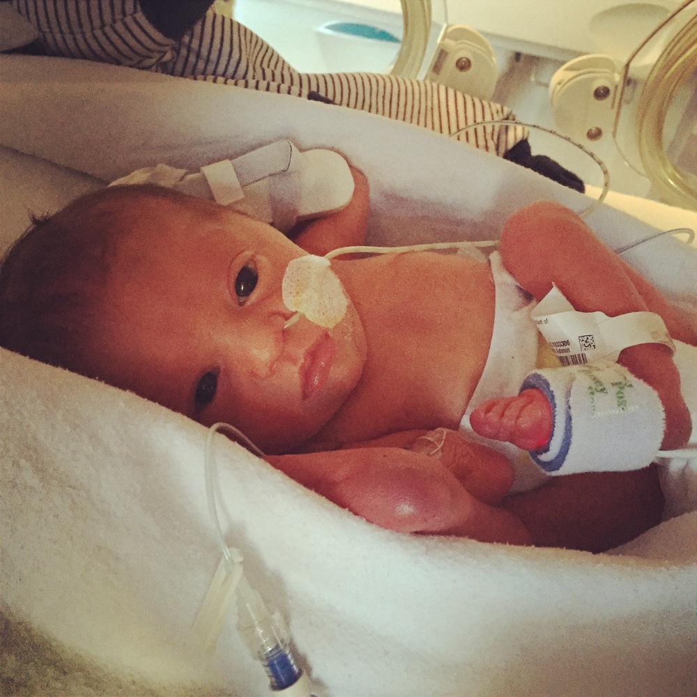 sophia week 1 premature baby