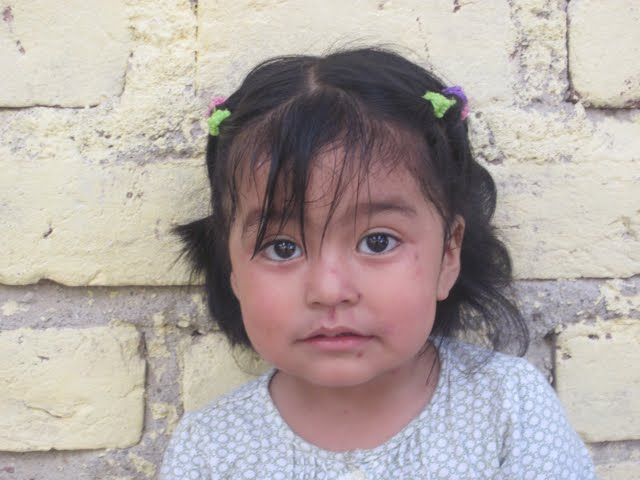 Valerie...2 years old...treated her for lice and a staph infection on her face.