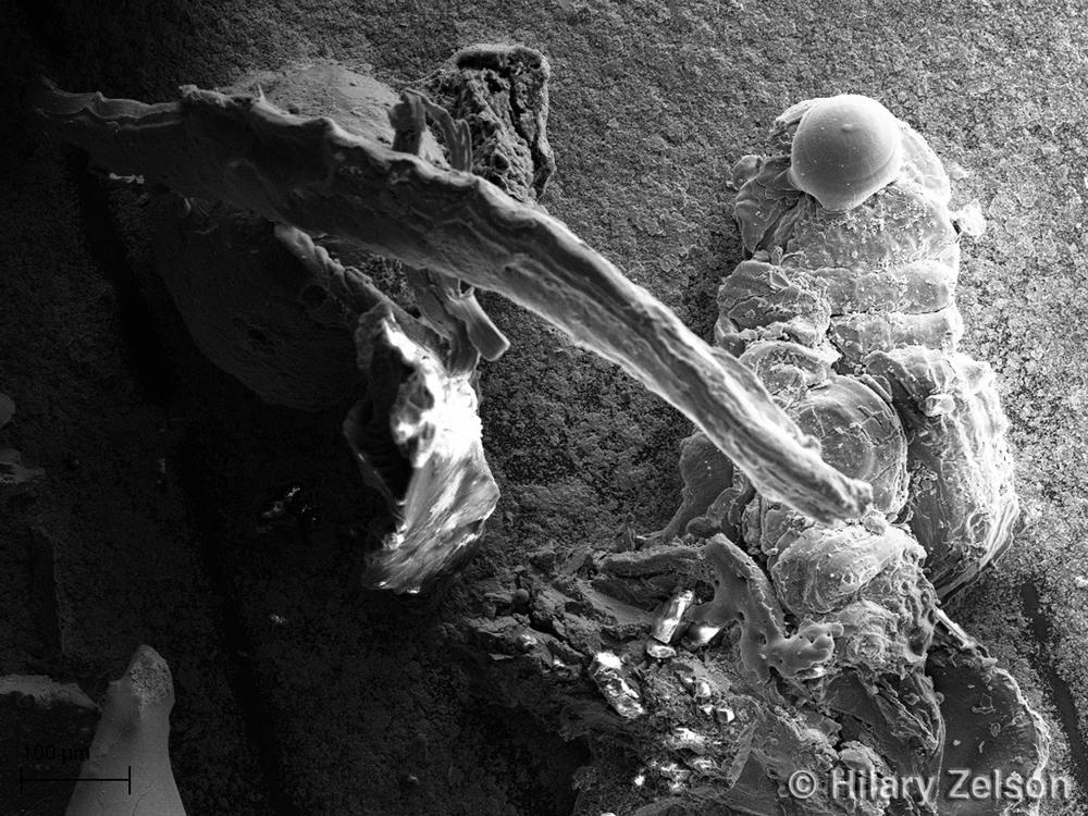 Scanning Electron Microscope Image 2010