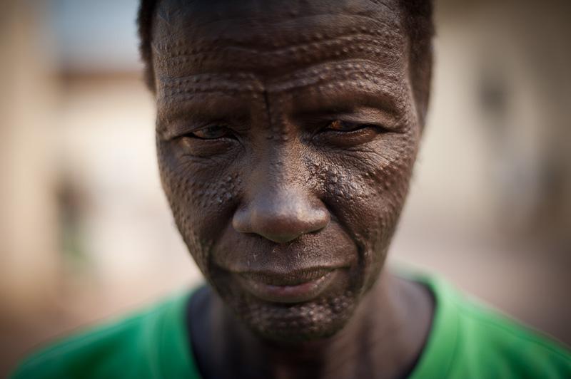 Thomas and his tribal scars, Bentiu.