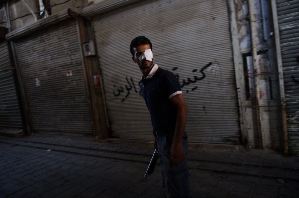 An injured Free Syrian Army fighter stands in the Old City. August 2012.