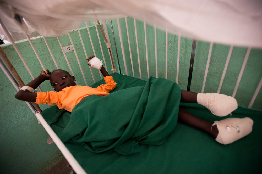 Mursila Timas (10) has had one foot amputated, the other seriously damaged, and has an injured thumb and infection, risking the amputation of her hand. She was hit by shrapnel as a bomb exploded in her village of Kurchi.