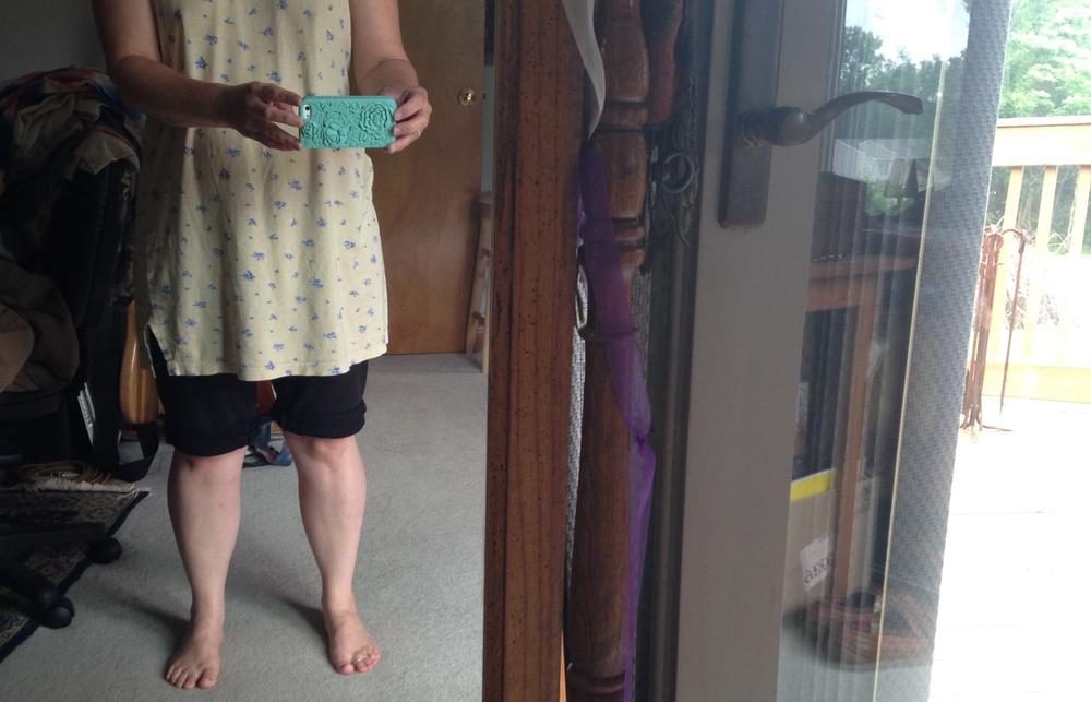 My 'knee selfie'...