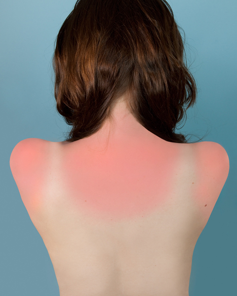 Sunburn in Naples, 2010  Brea Souders