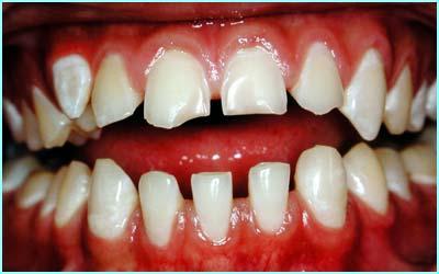 _38042398_teeth1.jpg