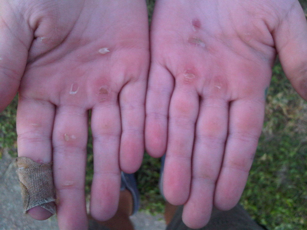 Mia-hands