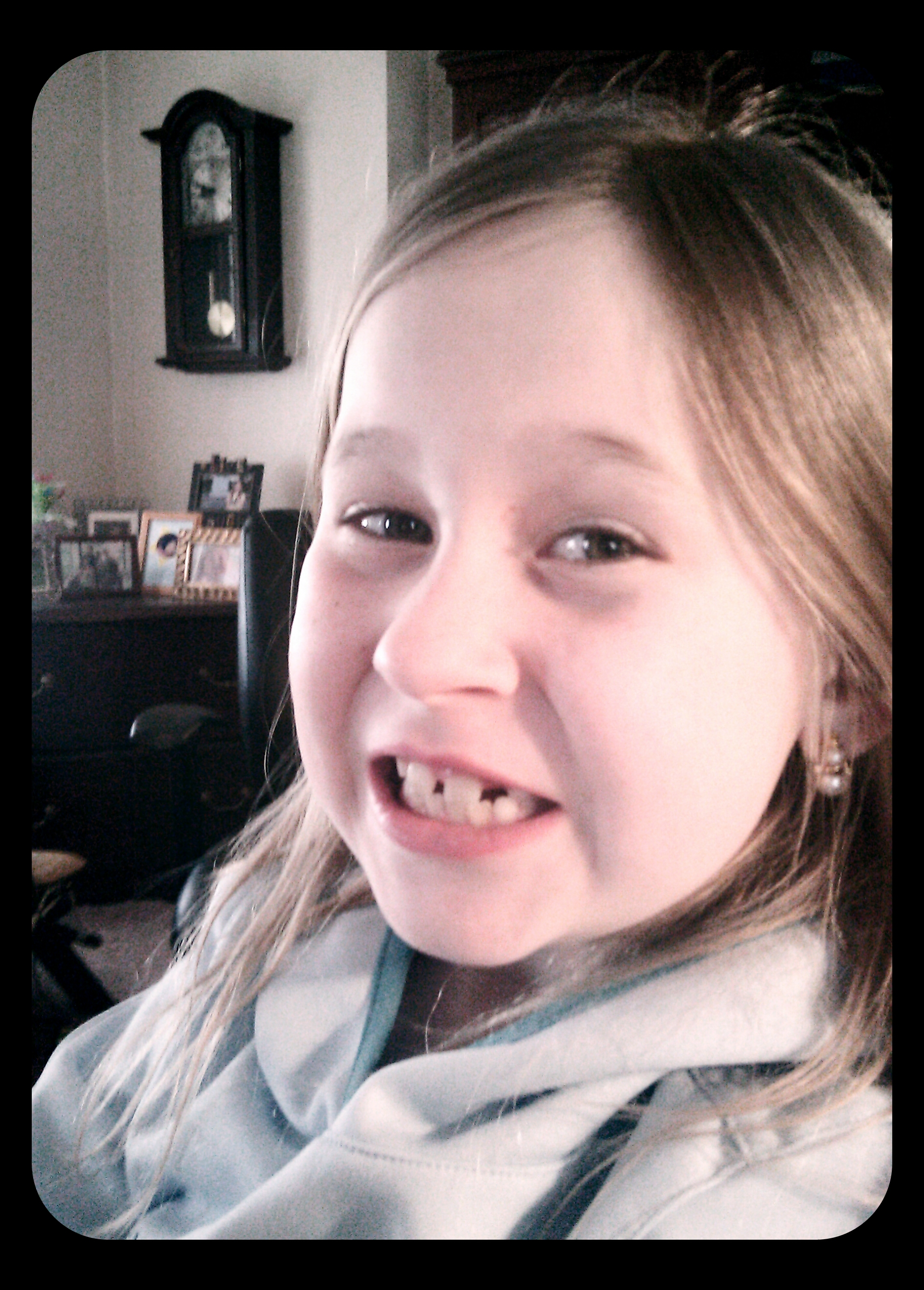 Mia pulled her own tooth
