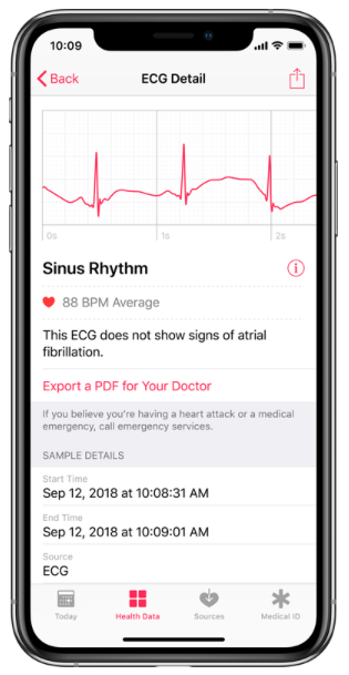 AppleWatch ECG.png