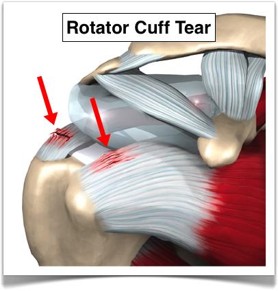 rotator-cuff-tear.png
