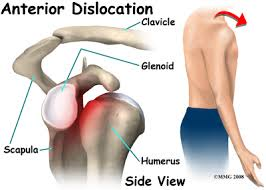 Glenohumeral dislocation.png