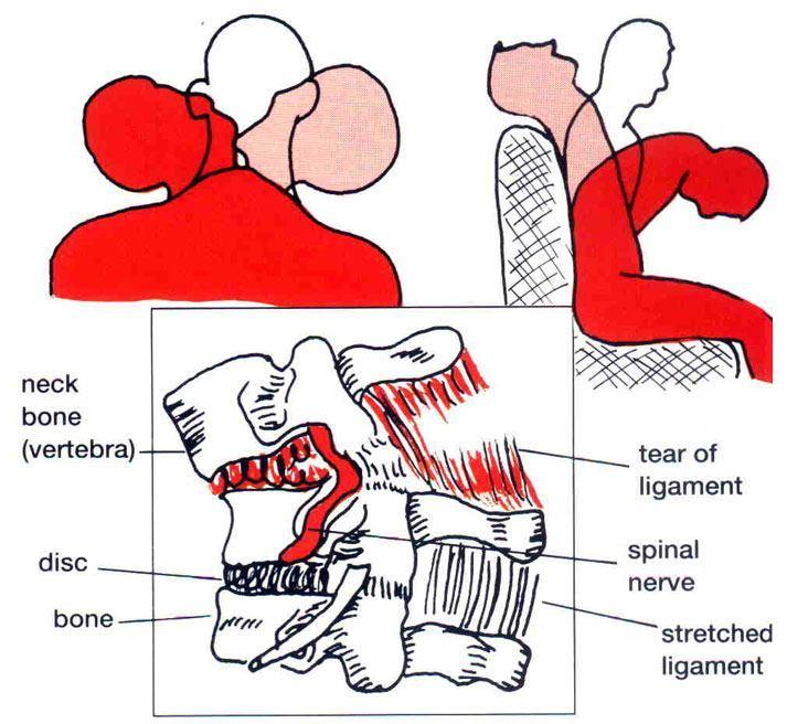biomechanics of whiplash injury