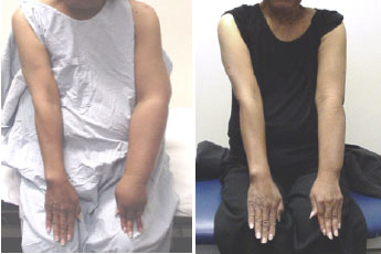 Arm Lymphedema edema