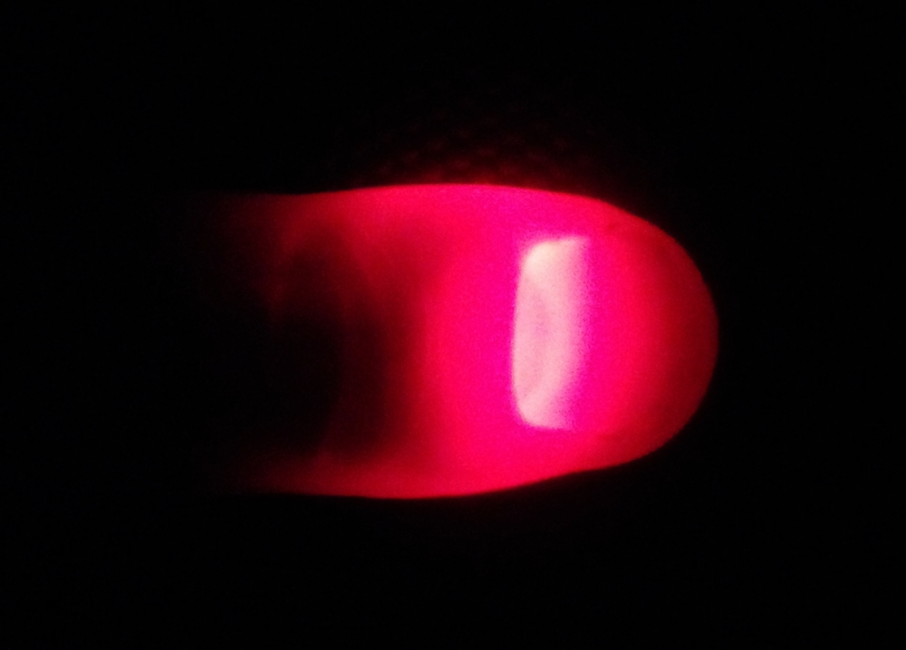 Photo of LED light from phone penetrating through thumb. Photo and thumb by author.