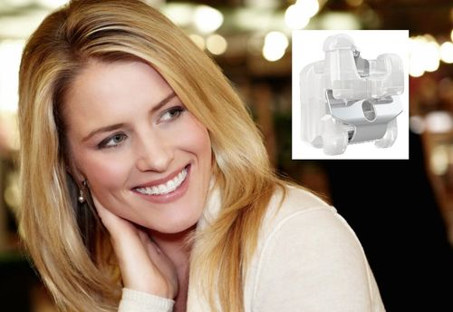 Empower Clear Braces combine clear cosmetics and self ligation.