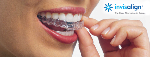 Invisalign clear braces are just one of many types of braces we offer at Simply Orthodontics.