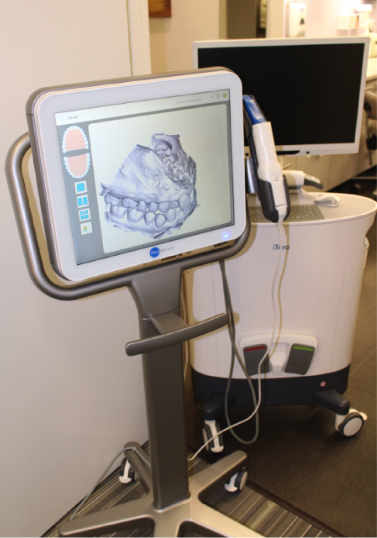 The iTero Element (foreground) has replaced the iTeroHD2.9 (background) at Simply Orthodontics. Digital impressions are used to plan treatments, simulate outcomes, develop dental models, and build custom treatment appliances including Invisalign and Invisalign Teen and retainers.