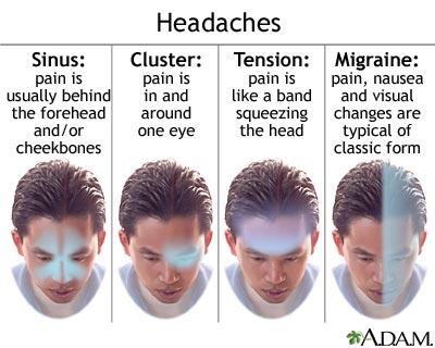 migraine-symptoms1.jpg