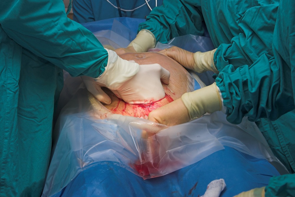 Cesarean section birth.jpg