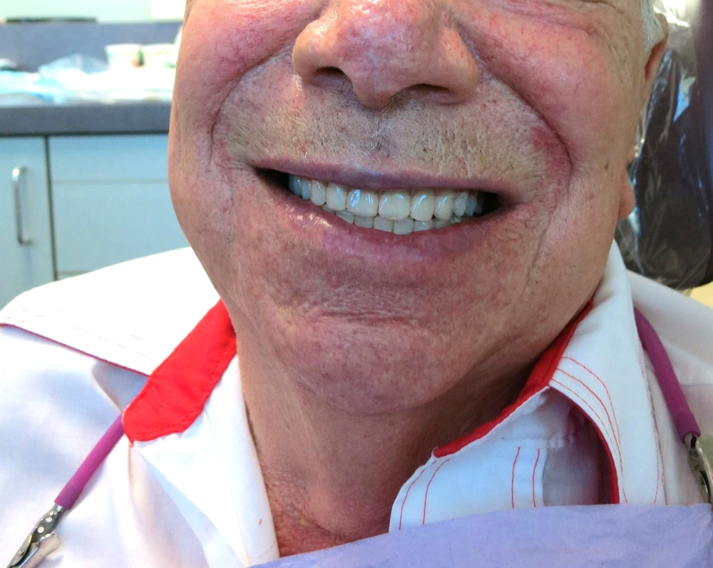 Our dentures are created in house by our very talented lab technician. This allows us to have full control over the process and give you the best results.