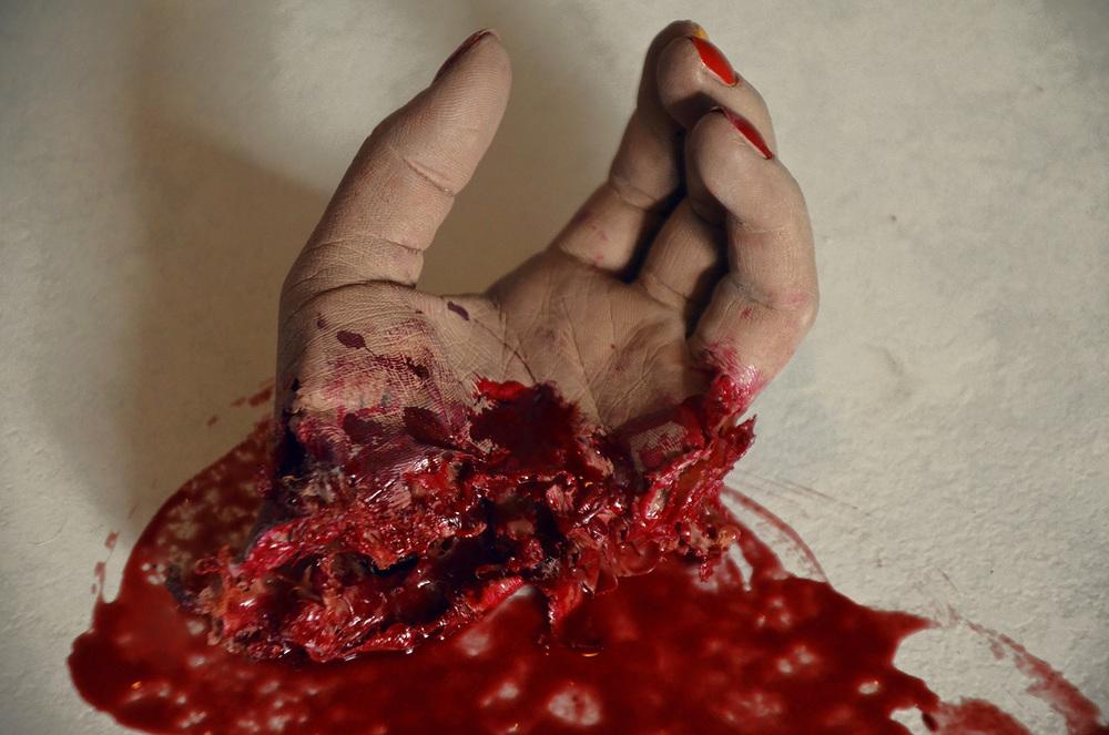 Künstliche abgerissene Hand