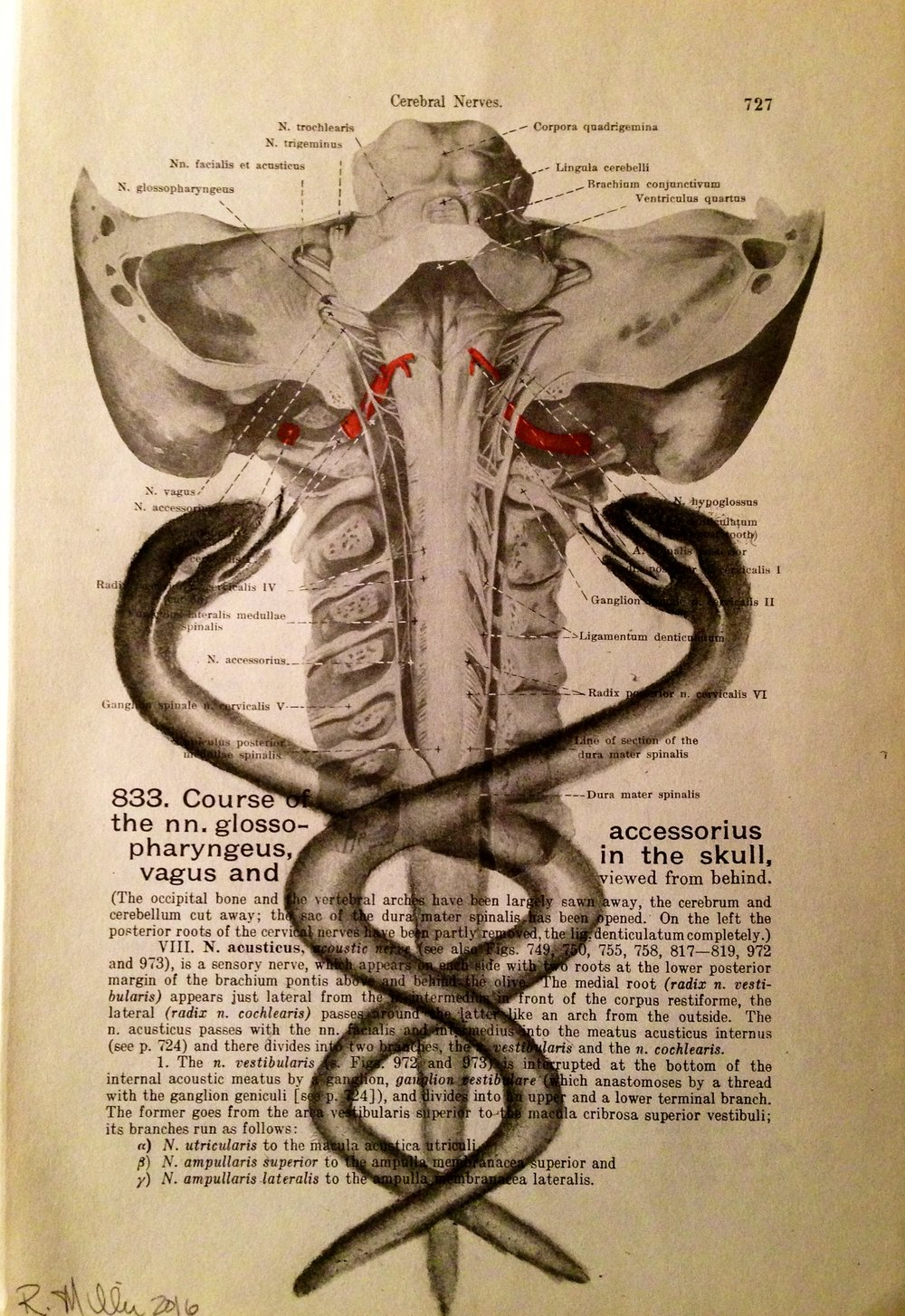 Cerebral Constriction, 2016 Charcoal on antique medical paper