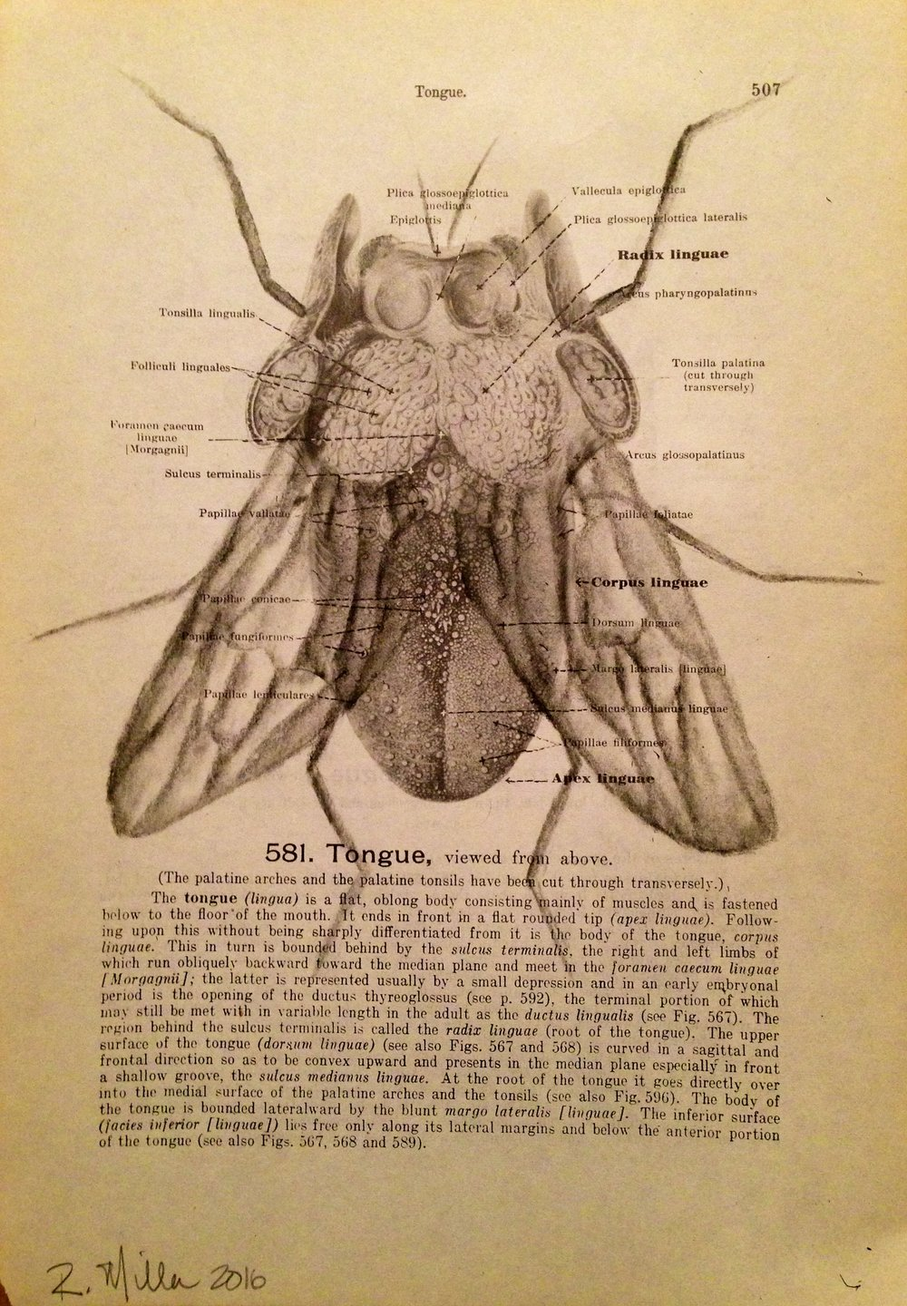 Flying Tongue, 2016 Charcoal on antique medical paper