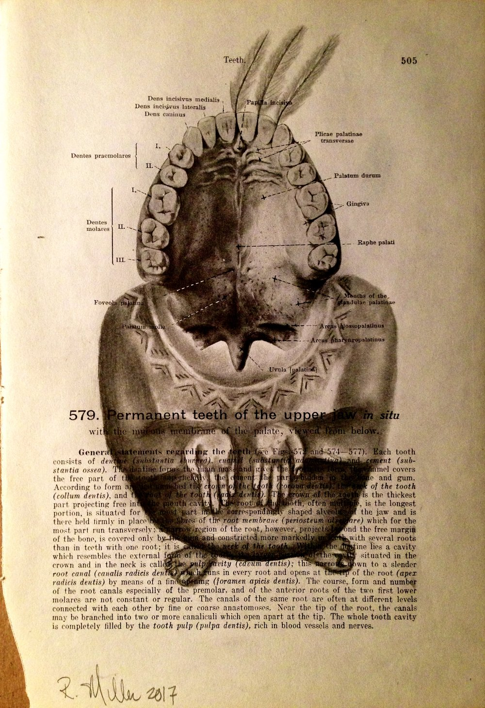 Wisdom Teeth, 2017 Charcoal on antique medical paper
