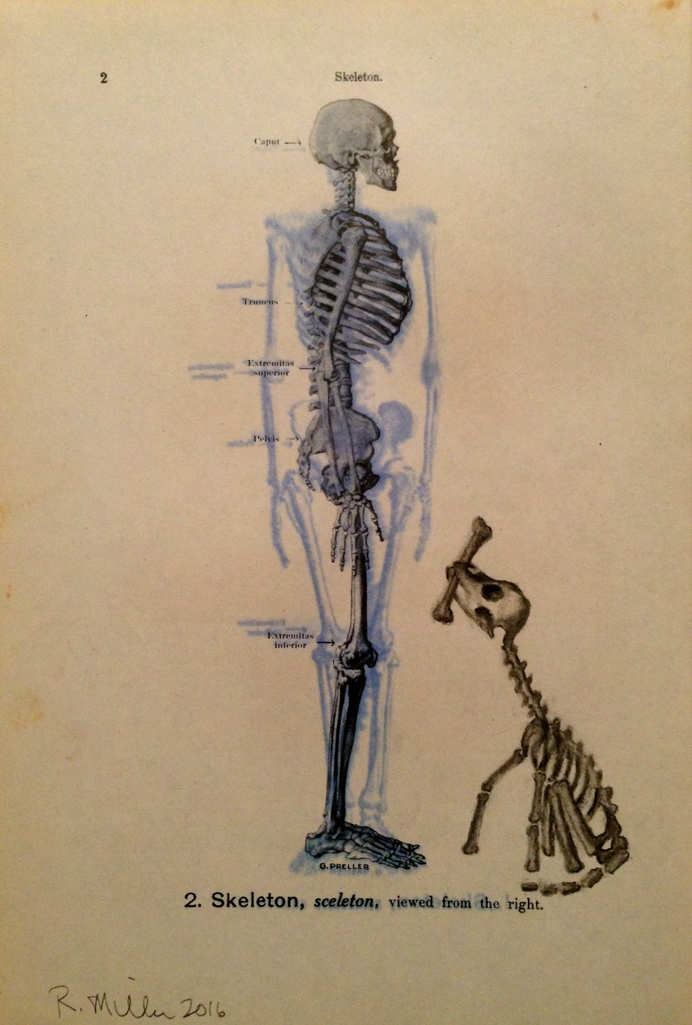 Aortic Bird, 2016 (post spray) Charcoal on antique medical paper