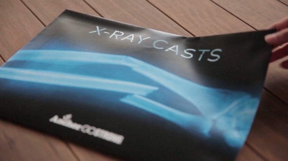 x-ray-casts.jpg