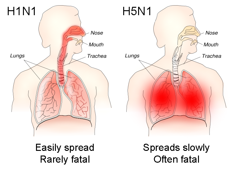 H1N1_versus_H5N1_pathology.png