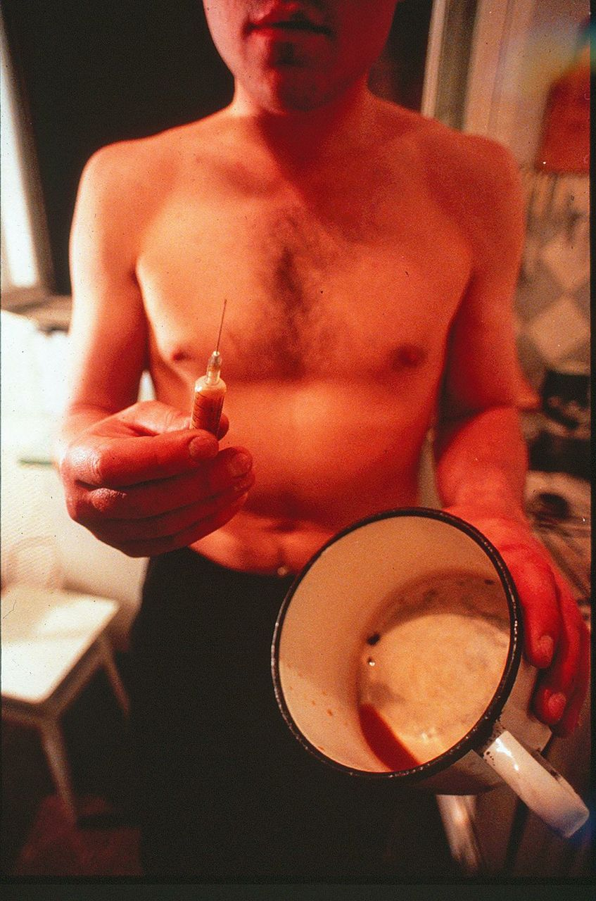 "A Ukrainian man displays ""chorny"", a narcotic concoction cooked in kitchens, emulsified with often contaminated human blood, and injected with 20 cc syringes."