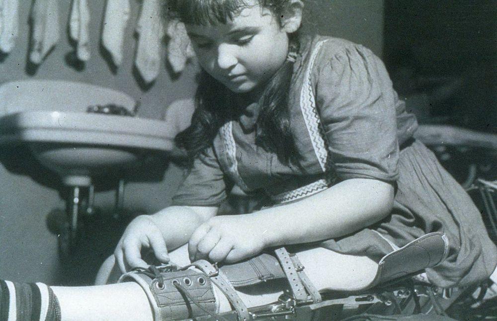 Girl with Polio Braces