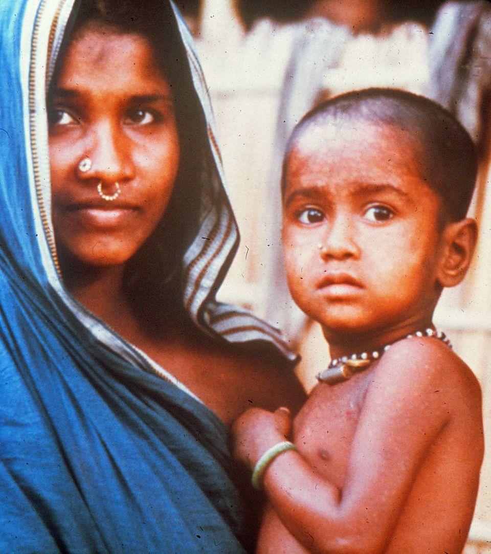 The last smallpox case in Bangladesh