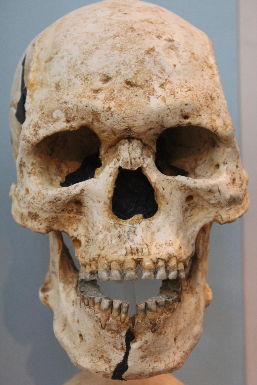 Teeth worn flat from a coarse diet