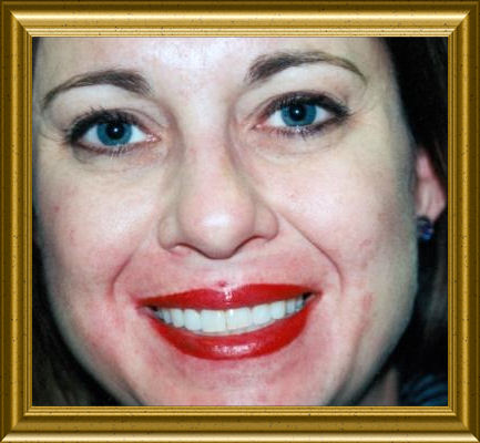 permanent lips by peggi hurley.jpg