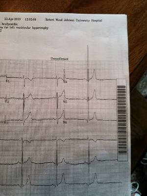 EKG - MAY 3.jpg