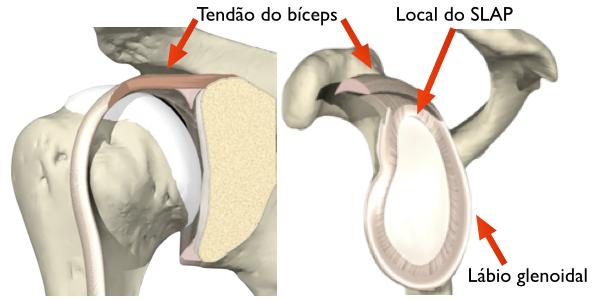 Ombro normal, mostrando a inserção do bíceps no lábio glenoidal superior