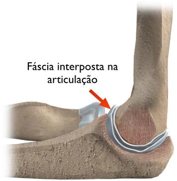 artrosedocotovelo02