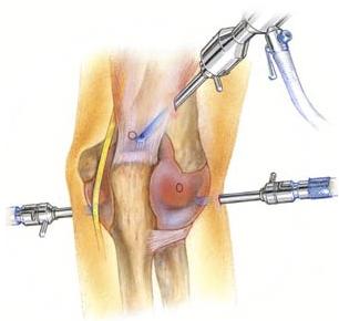 artroscopiacotovelo