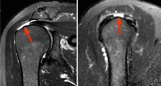 Ressonância magnética mostrando o rompimento do manguito rotador (setas)