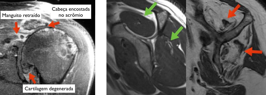 Ressonância magnética. Imagem da esquerda: achados comuns na artropatia do manguito rotador. Imagensda direita: musculatura normal (setas verdes) e musculatura substituída por gordura, como ocorre na artropatia do manguito rotador (setas vermelhas)