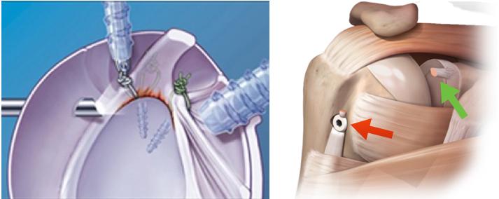 Cirurgia para lesão SLAP. Imagem da esquerda: reinserção do lábio glenoidal com âncoras. Imagem da direita: t enodese do bíceps. Seta vermelha: tendão inserido no osso. Seta verde: local onde o tendão estava fixado originalmente
