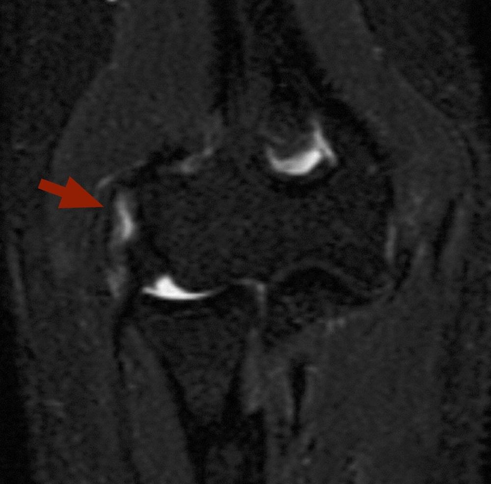 Ressonância magnética mostrando lesão da musculatura junto ao epicôndilo lateral