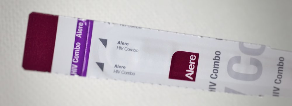 Rapid HIV Antigen Antibody Test Strip