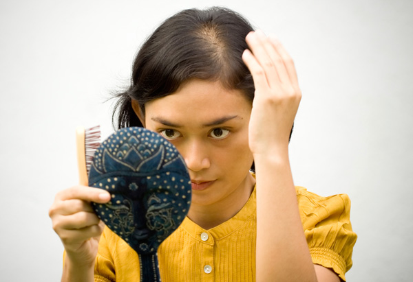 hair loss_C.F.-05.13.13.jpg