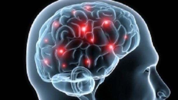 blood sugar rot brain.jpg