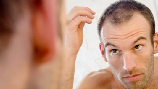 losing hair.jpg