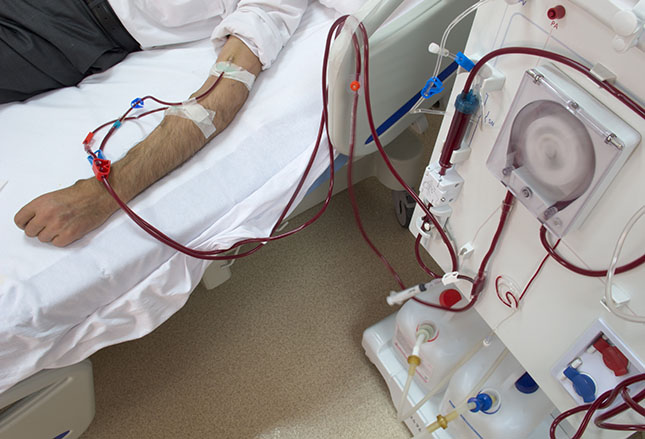 dialysis recovery time.jpg