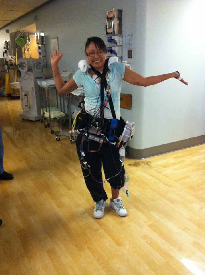wearable dialysis machine